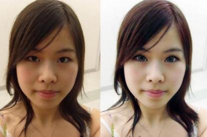 skin-bleach